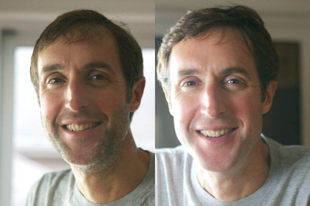 Mike Before & After